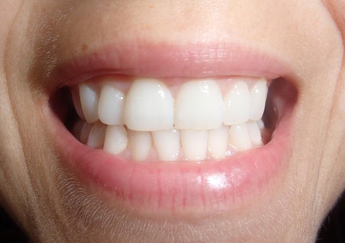 jak wybielić zęby-uśmiech